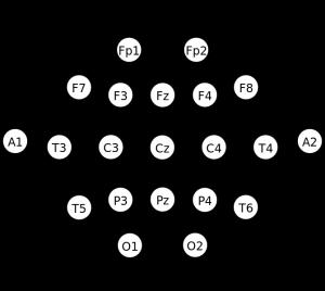 10_20_EEG